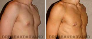 Gynecomastia. Before and After Photos. 17 year old male - right side oblique view