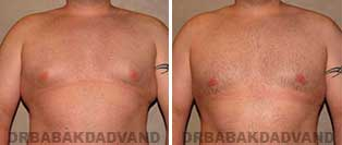 Gynecomastia. Before & After Photos. 28 year old man - front view