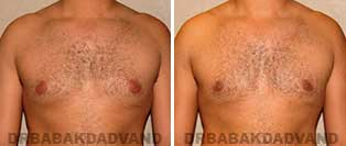 Before & After Photos. Gynecomastia. 28 year old. Man - front view