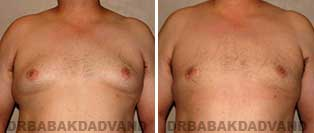 Before & After Photos. Gynecomastia. 35 year old. Man - front view