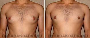 Before & After Photos. Gynecomastia. 22 year old. Man - front view