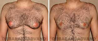 Before & After Photos. Gynecomastia. 28 year old. Male - front view