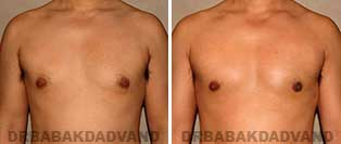 Before and After Photos. Gynecomastia. 36 year old. Man - front view