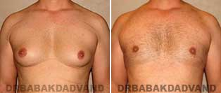 Before and After Photos. Gynecomastia. 35 year old. Man - front view