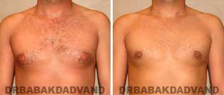 Before and After Photos. Gynecomastia. 32 year old. Man - front view