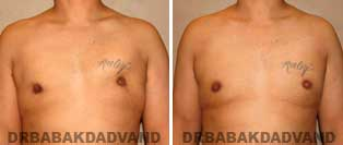 Before and After Photos. Gynecomastia. 34 year old. Male - front view