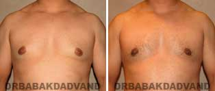 Before and After Photos. Gynecomastia. 27 year old. Male - front view