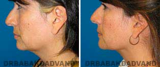 Necklift: Before and After Photos - 39 year old women, left side view