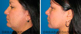 Necklift: Before and After Photos - 42 year old women, left side view