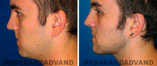 Necklift: Before and After Photos - 26 year old male, left side view