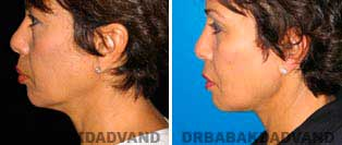 Necklift: Before and After Photos - 55 year old women, left side view