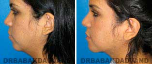 Necklift: Before and After Photos - 20 year old women, left side view