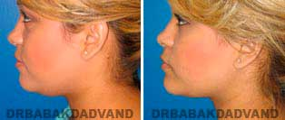 Necklift: Before and After Photos - 23 year old women, left side view