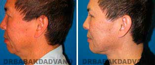 Necklift: Before and After Photos - 57 year old male, left side view