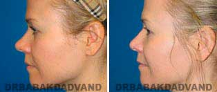 Rhinoplasty: Before and After Photos - 38 year old women, left side view