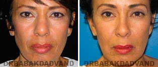 Rhinoplasty: Before and After Photos - 57 year old women, front view