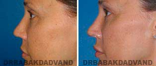 Rhinoplasty: Before and After Photos - 42 year old women, left side view