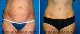 Tummy Tuck: Before and After Photos. 57 year old female - front view