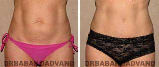 Tummy Tuck: Before and After Photos. 42 year old female - front view