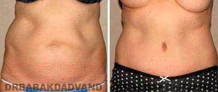 Tummy Tuck: Before and After Photos. 58 year old female - front view