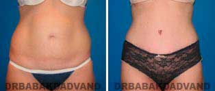 Tummy Tuck: Before and After Photos. 35 year old female - front view