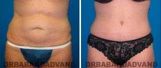 Tummy Tuck: Before and After Photos. 46 year old female - front view