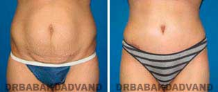 Tummy Tuck: Before and After Photos. 44 year old female - front view