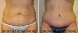 Tummy Tuck: Before and After Photos. 37 year old female - front view