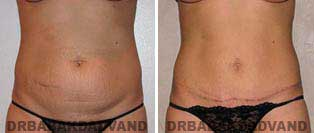 Tummy Tuck: Before and After Photos. 28 year old female - front view