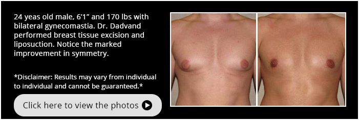 Gynecomastia. Before and After Photos.