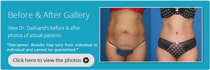 Tummy Tuck. Before and After Gallery