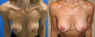 rippling With breast implants photo