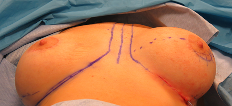 breast correction process photo