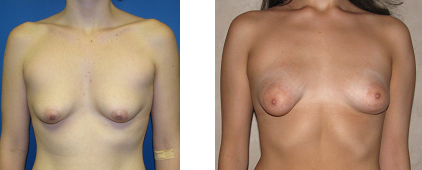 tuberous breast photo 1