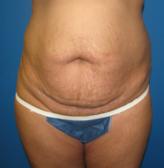 Best Candidates for Tummy Tuck before photo