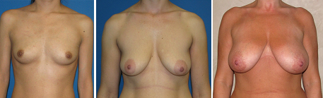 breast surgery patients photo
