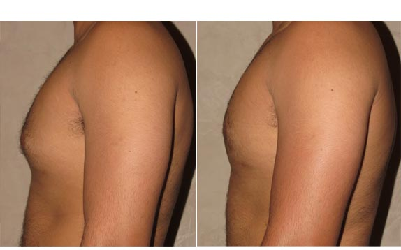 gynecomastia surgery revision before and after photo 2