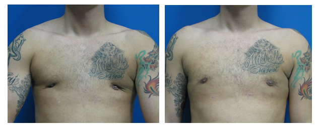 gynecomastia before and after photo