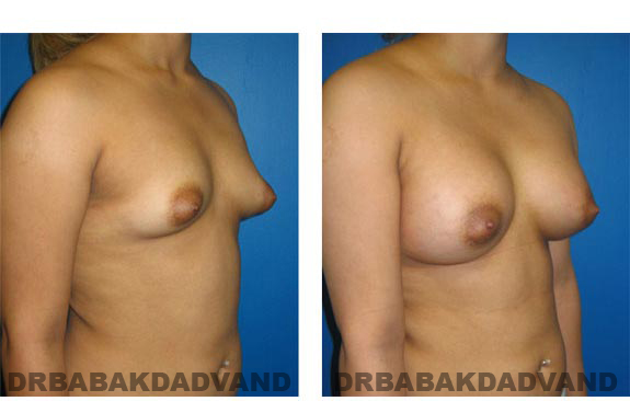 Before and After Photos. Breast-Augmentation:  - Woman, right side, oblique view