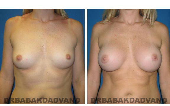 Before and After Photos. Breast-Augmentation: - front view 31 yr old woman