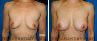 Breast Augmentation. Before & After Photos. 41 year old woman frontal view