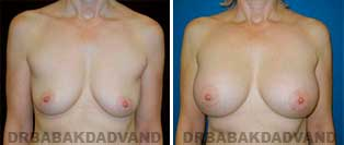 Breast Augmentation. Before & After Photos. 52 year old woman frontal view