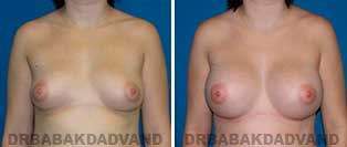 Breast Augmentation. Before & After Photos. 23 year old female frontal view