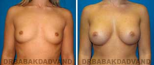 Breast Augmentation. Before & After Photos. 23 year old woman frontal view
