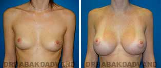 Breast Augmentation. Before and After Photos. 26 year old woman - frontal view