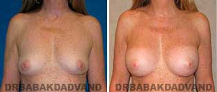 Breast Augmentation. Before and After Photos. 44 year old woman - frontal view
