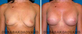 Breast Augmentation. Before & After Photos. 34 year old woman - frontal view