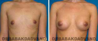 Breast Augmentation. Before and After Photos.23 year old woman - frontal view