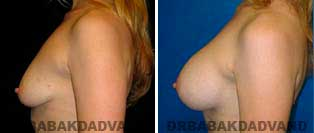 Breast Augmentation. Before and After Photos. 32 year old woman - left side view