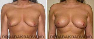 Breast Augmentation. Before and After Photos. 22 year old woman - front view